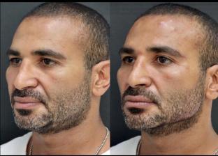 أحمد سعد قبل وبعد عملية التجميل