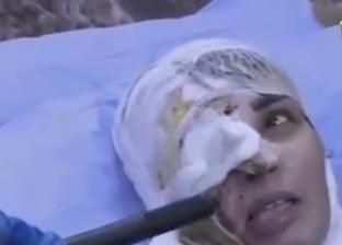 السيدة العراقية بعد تشوه وجهها