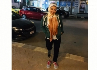 فاطمة طاهر تبتر قدمها اليمنى بعد اصابتها بالورم