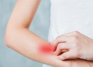 أعراض جلدية تظهر على بعض المصابين بفيروس كورونا