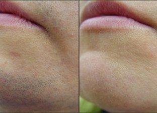 نصائح لإزالة شعر الوجه