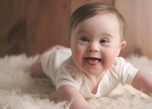 علماء يكتشفون علاج جديد لحماية الطفل من الإصابة بمتلازمة داون