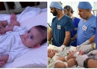 عملية فصل التوأم السيامي