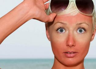 7 نصائح لتجنب المشاكل الشمس في المصيف