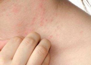 أعراض التينيا