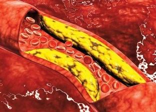 الكوليسترول في الدم