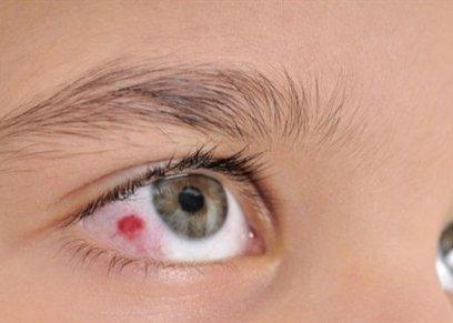 نصائح لحماية عينيك من حروق الشمس في الصيف؟