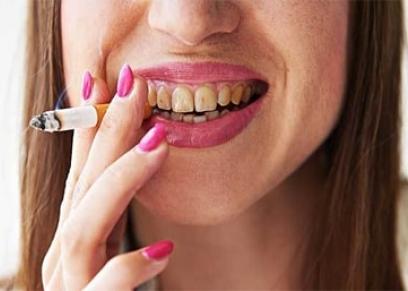 آثار التدخين على الأسنان