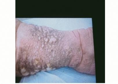 مرض نادر تعاني منه مروة في قدميها