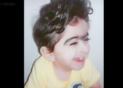 متلازمة نادرة تصيب طفل 3 سنوات