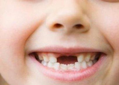 الأسنان اللبنية لدى الأطفال