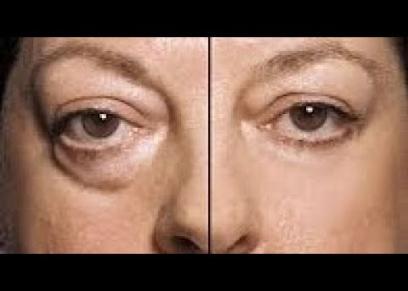 نصائح تساعد في التخلص من الأكياس الدهنية تحت العين