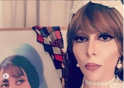 ميريهان حسين تحول وجهها إلى