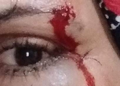 رانيا ضحية العنف الأسري
