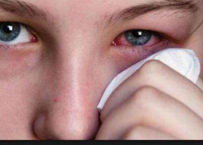 أعراض الروماتويد