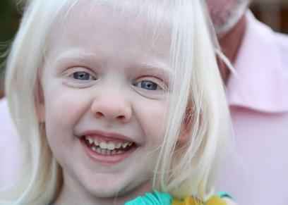 طفلة مصابة بمرض المهق