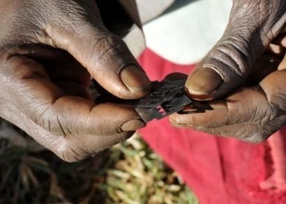 أدوات يستخدمها البعض في عملية الختان