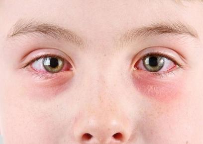 امراض خطيرة يمكن اكتشافها من العين