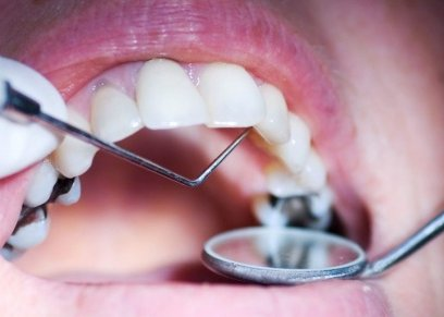 منها زيت جوز الهند.. طرق منزلية تساعد في التخلص من تسوس الأسنان