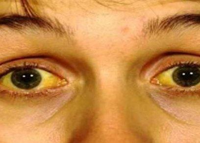 اصفرار العين وخطورته