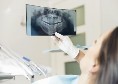 أشعة على الأسنان