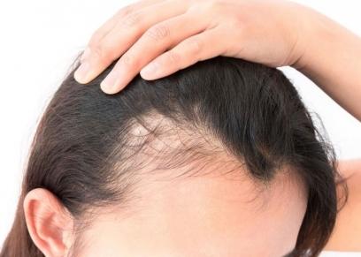 وصفات طبيعية تحمى الشعر من الجفاف