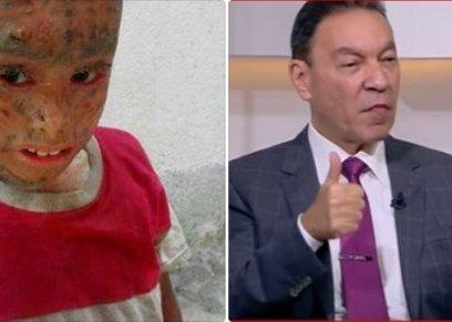 الدكتور هاني الناظر والطفل المصاب