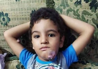 طفل يعاني التنمر بعد اصابته بسرطان الجلد
