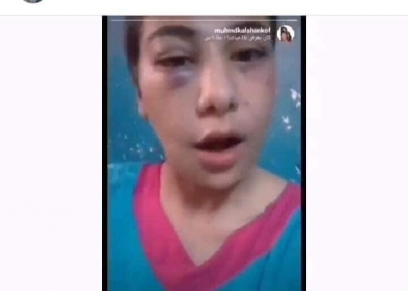 منة عبد العزيز