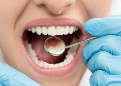 ضعف الأسنان