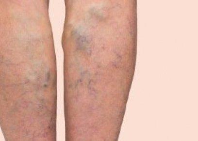 اعراض دوالى الساقين