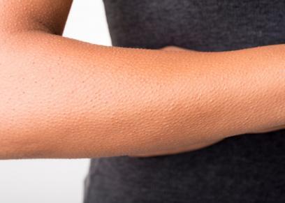 9 نصائح للتخلص من جلد الوزة