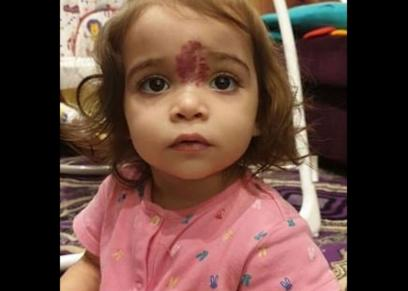 طفلة كويتية تعاني من ورم في وجهها
