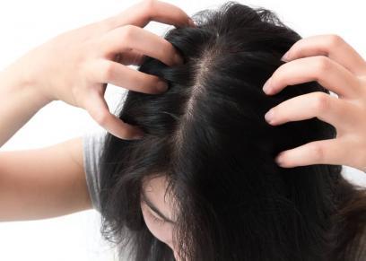 4 مواد من منزلك تساعد في التخلص من قشرة الرأس