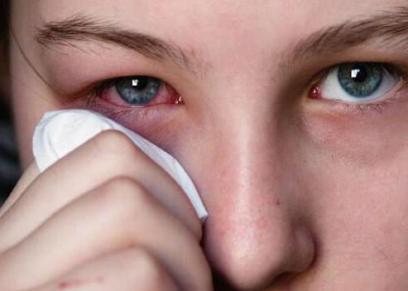 أسباب احمرار العين بشكل مفاجىء