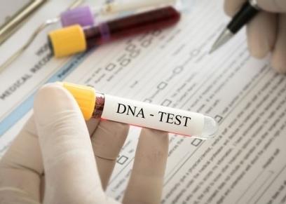 تحليل الحمض النووي