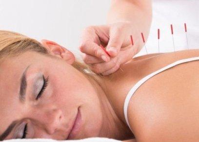 هل تخفف الإبر الصينية من أعراض انقطاع الطمث؟