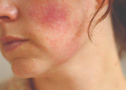نصائح لعلاج التهابات الجلد بعد البحر