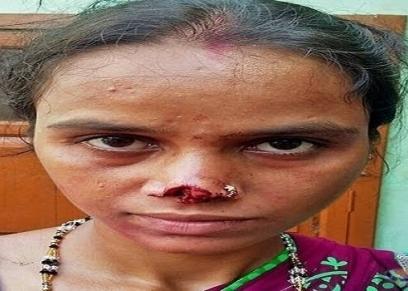 صورة أرشيفية لسيدة زوجها قطع أنفها