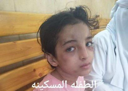 تعذيب الطفلة هبة