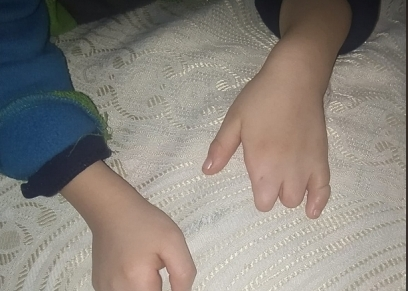الطفل علي دون أصابع