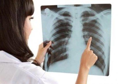 أسباب انتشار سرطان الرئة بين النساء أكثر من الرجال