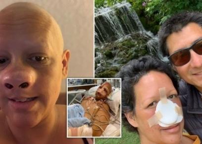 سيدة تجرى عملية لازالة أنفها بعد اصابتها بسرطان الجلد
