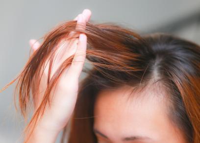 علاج نساقط الشعر