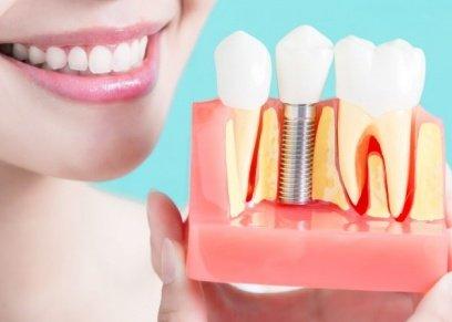 جراح تجميل الأسنان يوضح سهولة عملية زرع الضروس بدلا من بردها
