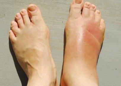 طرق تساعد في علاج انتفاخ القدمين