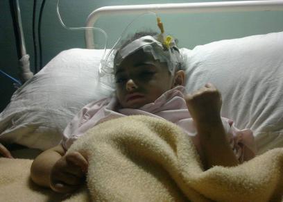 طفلة مصابة بضمور العضلات