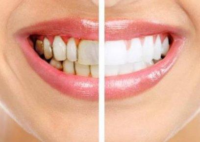 أضرار جير الأسنان