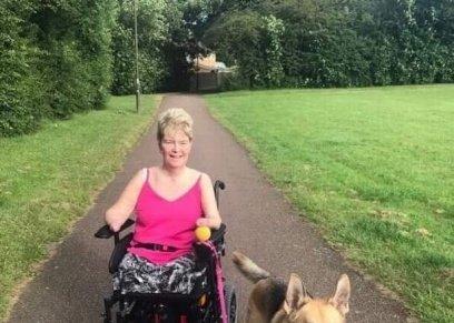 بالصور| سيدة بريطانية تحصل على دعامه اصطناعية بعدما فقدت أطرافها الأربعة