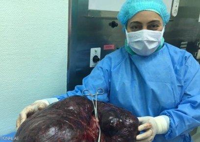 العملية استغرقت 3 ساعات تم خلالها إزالة رحم ومبيضي المريضة